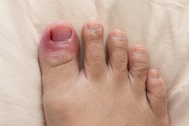 Painful infected ingrowing toenails