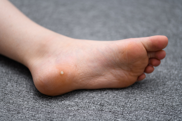 Verruca on sole of foot