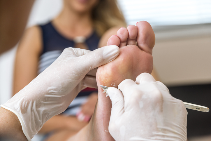 Female patients having corns and calluses treatment