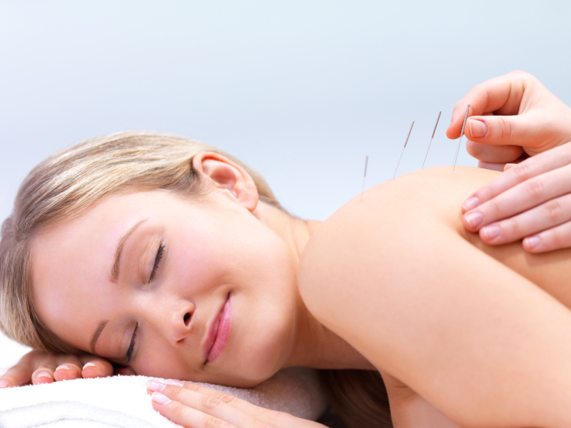 Female patient having acupuncture dry needling treatment