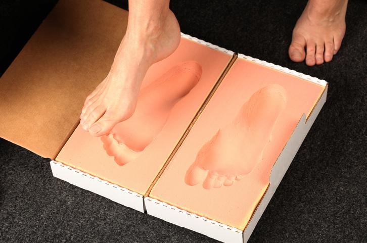 Patient taking a cast for custom orthotics