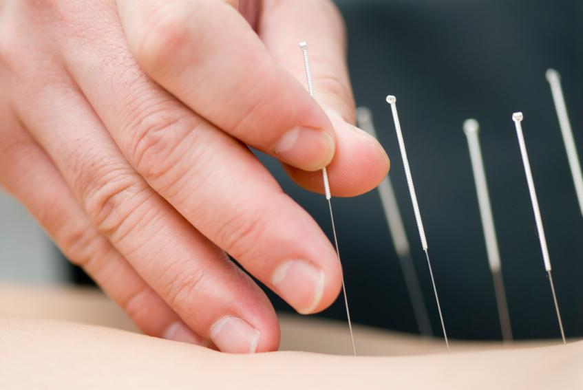 Acupuncture needle in the back