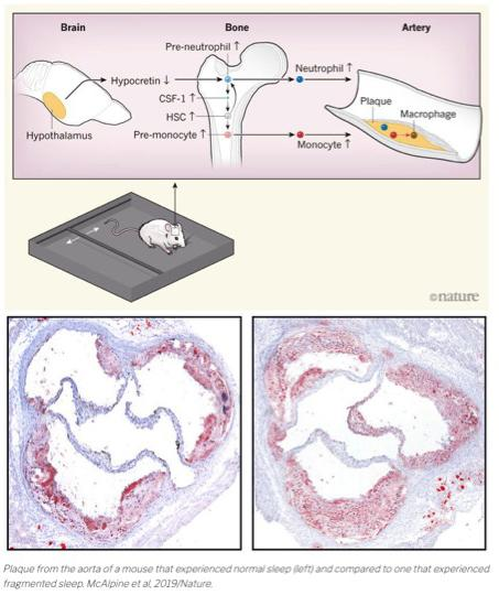 Nature paper showing sleep disruption contributes to cardiovascular disease