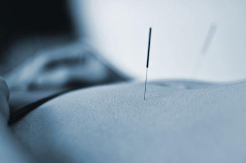Acupuncture needle in back